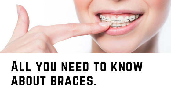 All you need to know about braces.