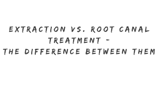 Extraction vs. Root Canal Treatment - The difference between them