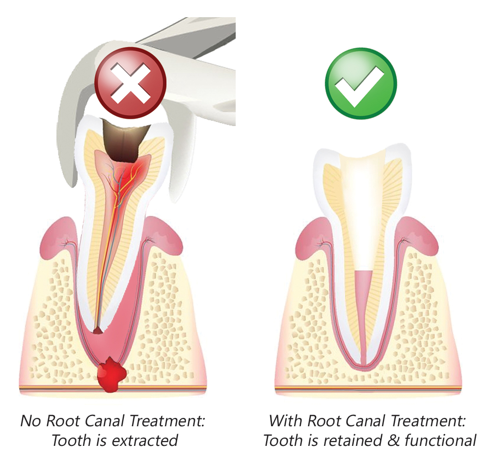 root canal vs extraction
