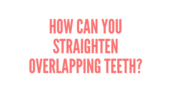 How can you straighten overlapping teeth?