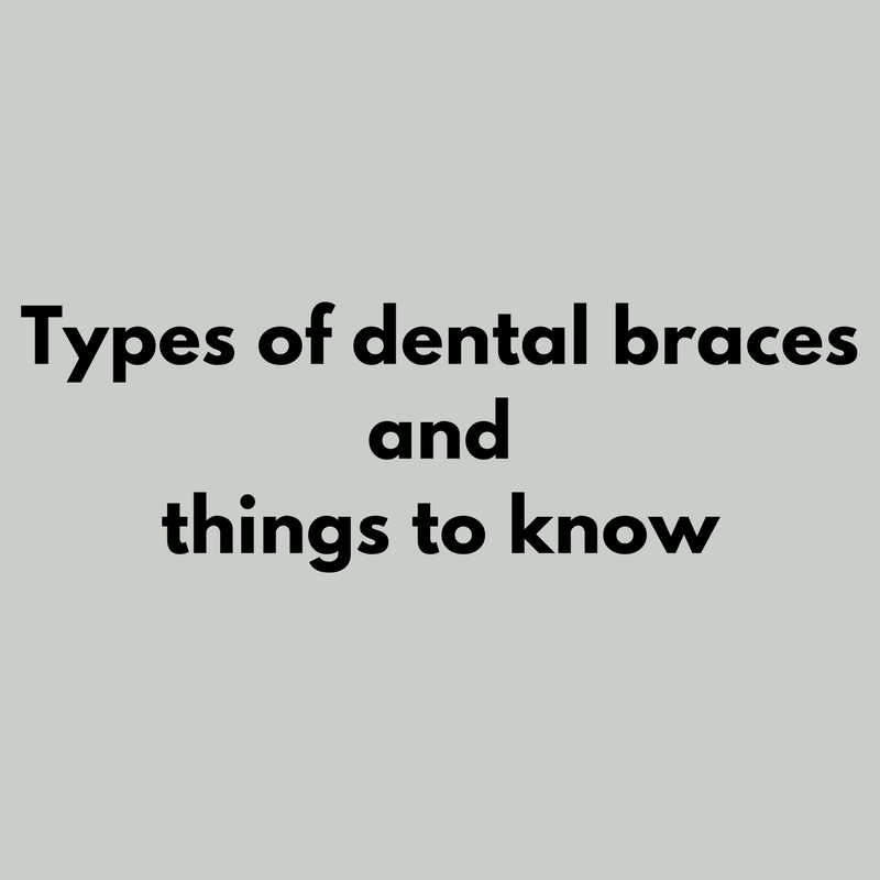 Types of dental braces and things to know