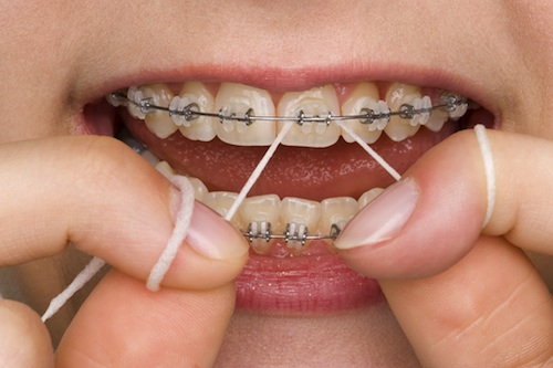 braces flossing