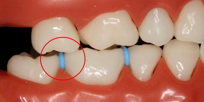 separators for braces